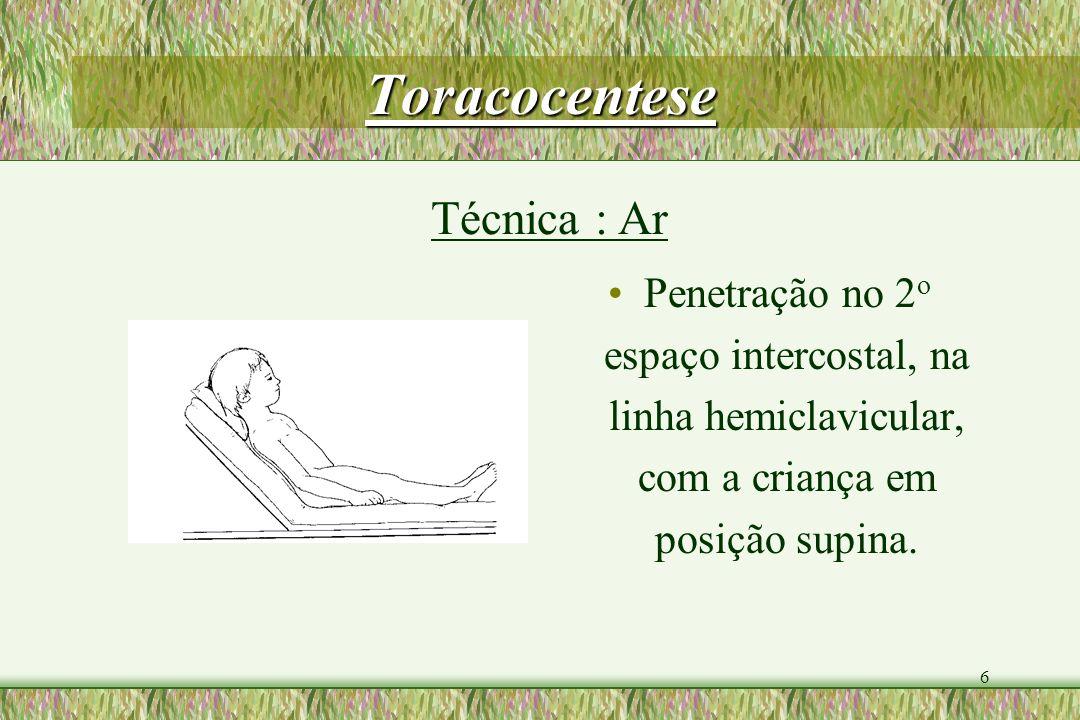 Toracocentese Técnica : Ar