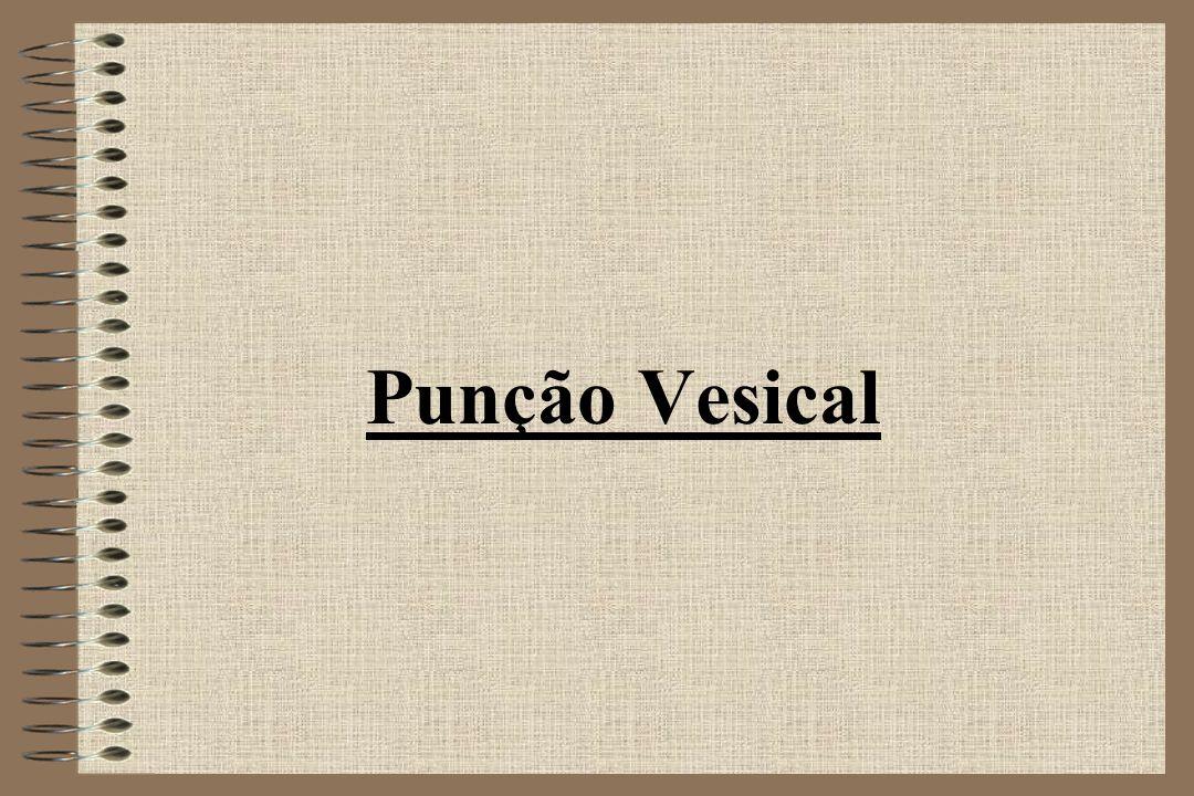 Punção Vesical