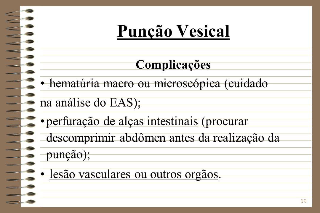 Punção Vesical Complicações hematúria macro ou microscópica (cuidado