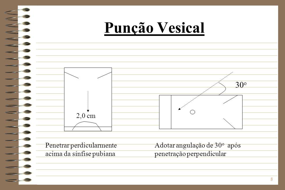 Punção Vesical 30o. 2,0 cm. Penetrar perdicularmente acima da sínfise pubiana.