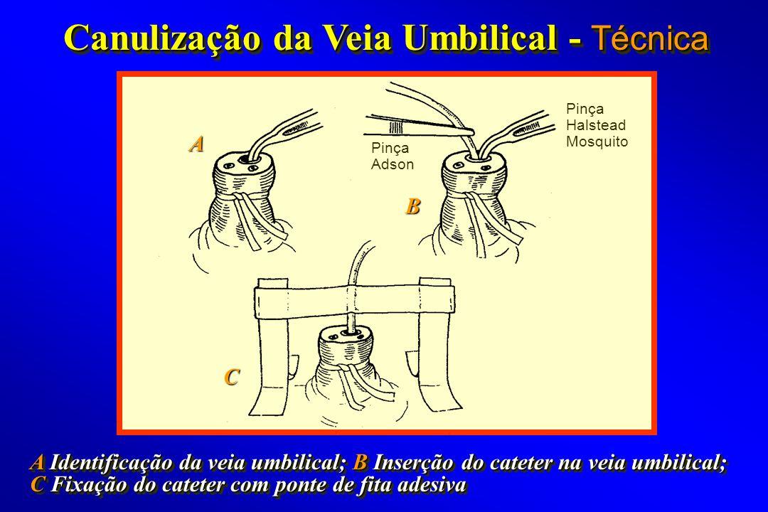 Canulização da Veia Umbilical - Técnica