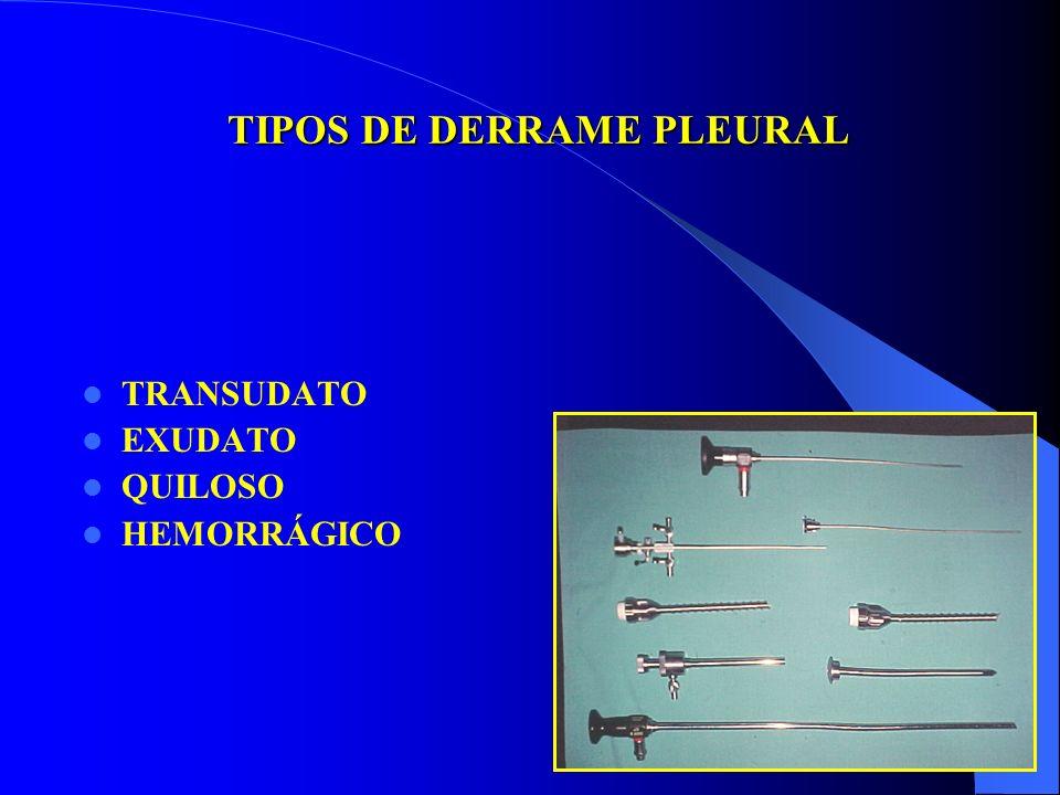 TIPOS DE DERRAME PLEURAL