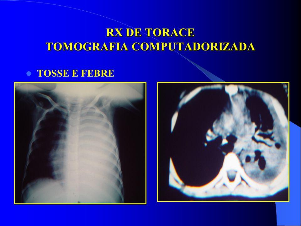 RX DE TORACE TOMOGRAFIA COMPUTADORIZADA