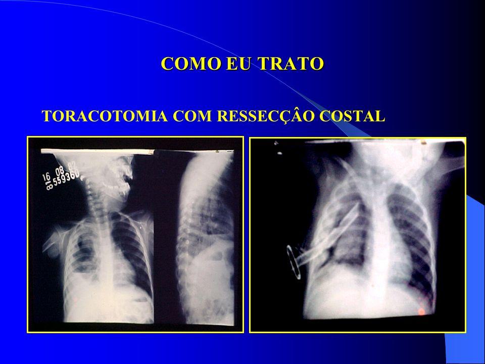 COMO EU TRATO TORACOTOMIA COM RESSECÇÂO COSTAL