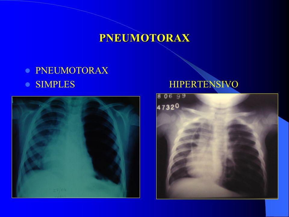 PNEUMOTORAX PNEUMOTORAX SIMPLES HIPERTENSIVO