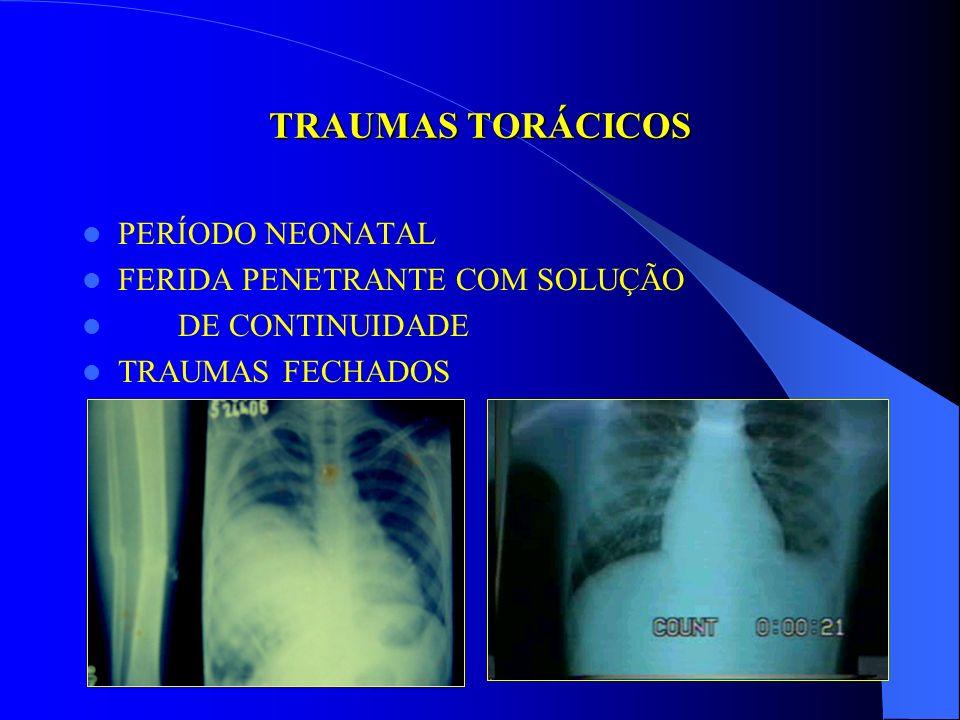 TRAUMAS TORÁCICOS PERÍODO NEONATAL FERIDA PENETRANTE COM SOLUÇÃO