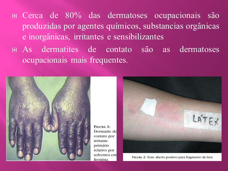 Cerca de 80% das dermatoses ocupacionais são produzidas por agentes químicos, substancias orgânicas e inorgânicas, irritantes e sensibilizantes