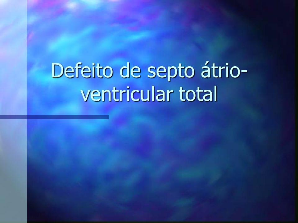 Defeito de septo átrio-ventricular total