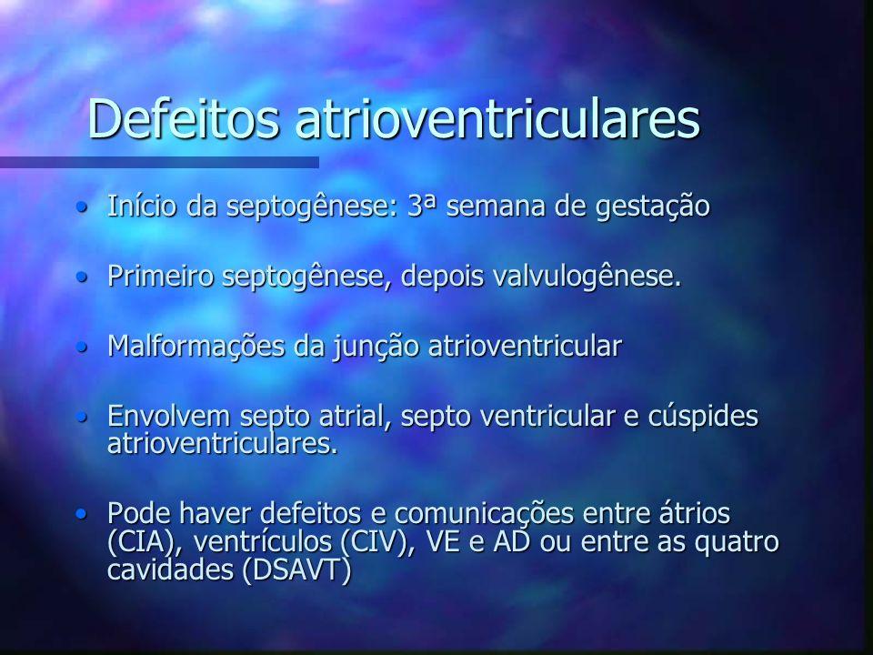Defeitos atrioventriculares