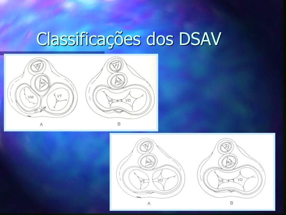 Classificações dos DSAV