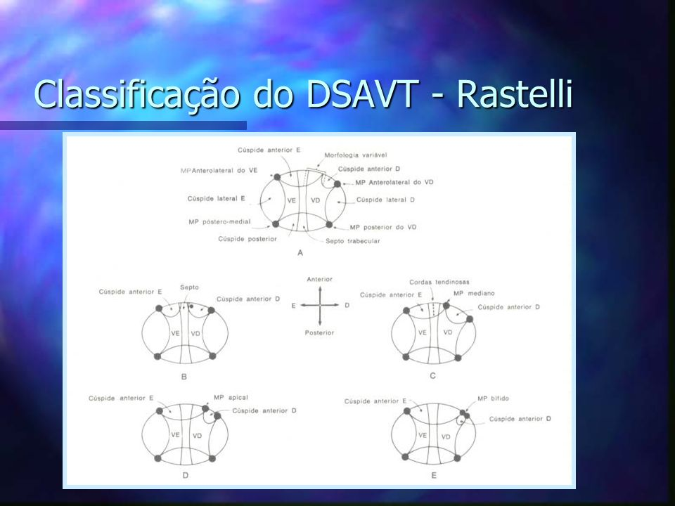 Classificação do DSAVT - Rastelli