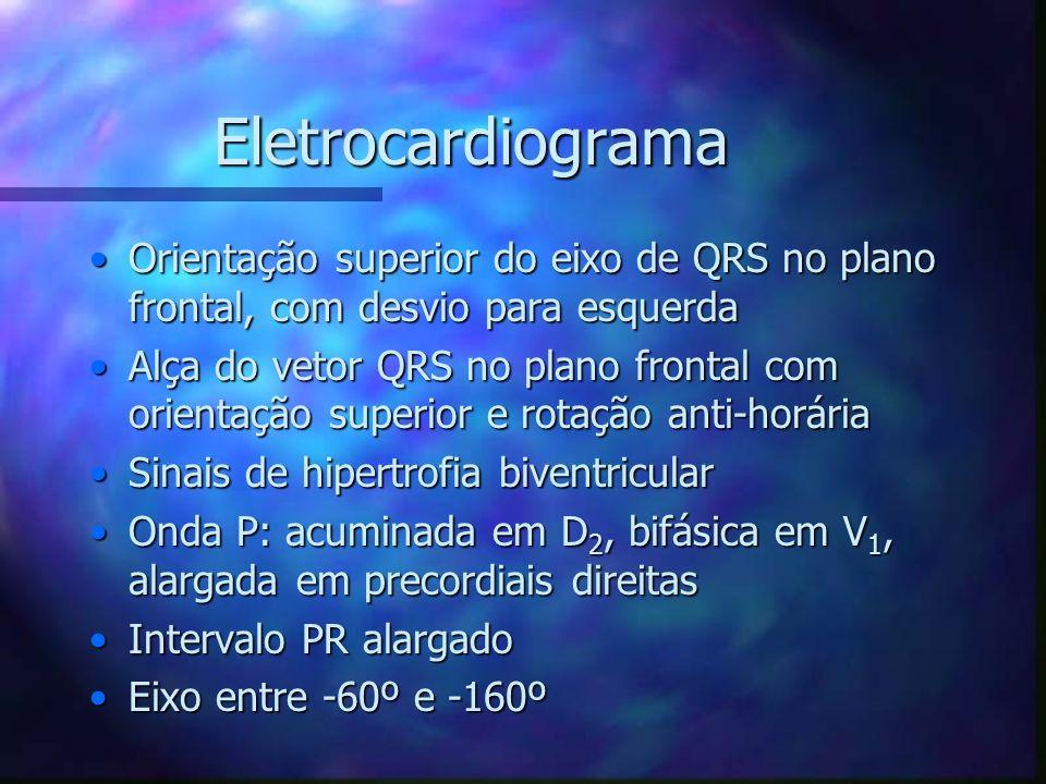 Eletrocardiograma Orientação superior do eixo de QRS no plano frontal, com desvio para esquerda.
