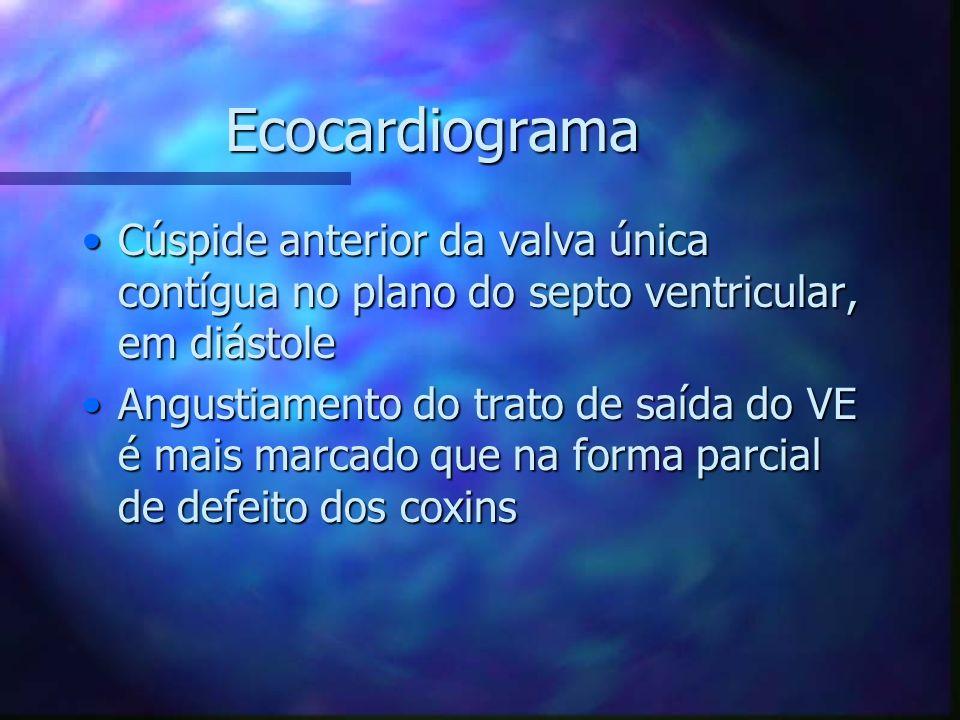 Ecocardiograma Cúspide anterior da valva única contígua no plano do septo ventricular, em diástole.