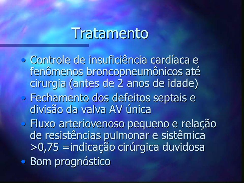 Tratamento Controle de insuficiência cardíaca e fenômenos broncopneumônicos até cirurgia (antes de 2 anos de idade)