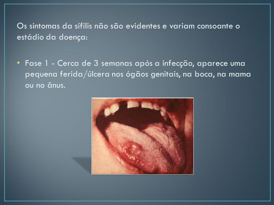 Os sintomas da sífilis não são evidentes e variam consoante o estádio da doença: