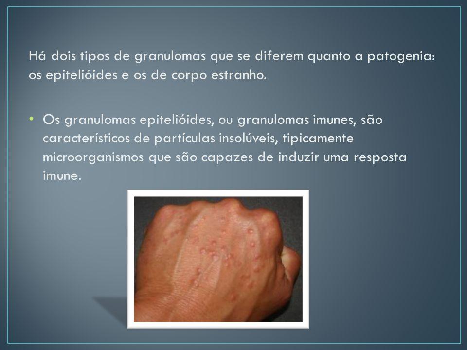 Há dois tipos de granulomas que se diferem quanto a patogenia: os epitelióides e os de corpo estranho.