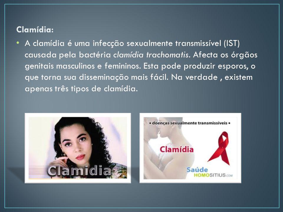 Clamídia: