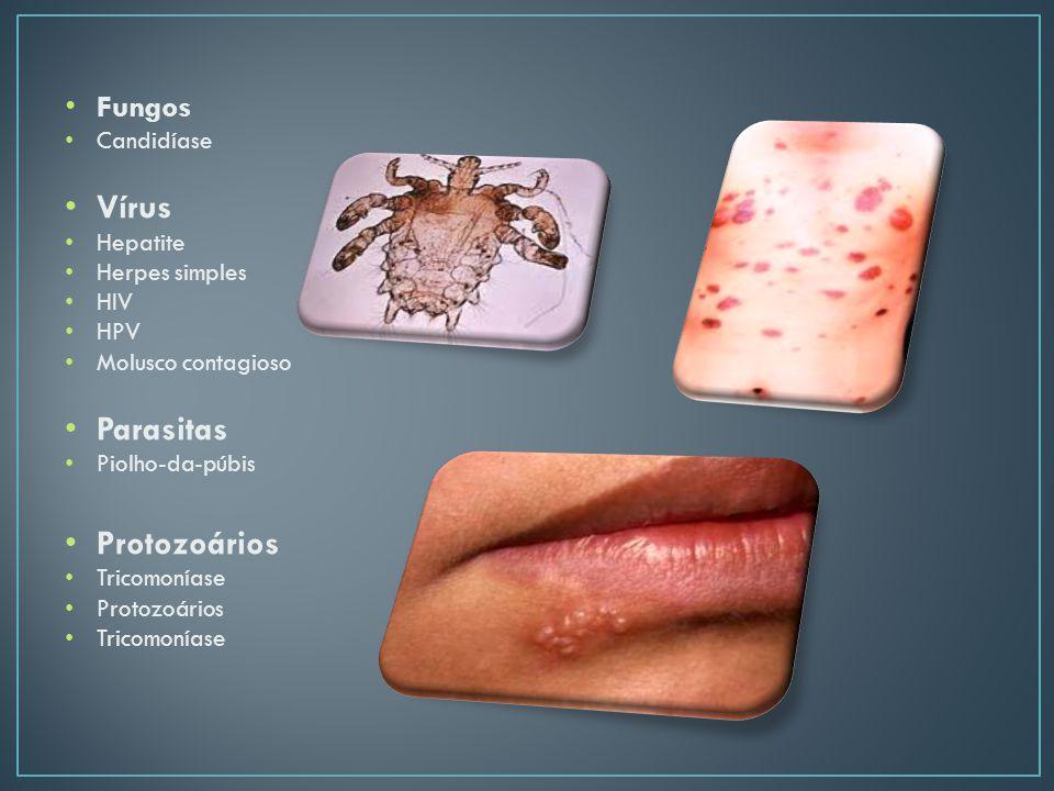 Vírus Parasitas Protozoários Fungos Candidíase Hepatite Herpes simples
