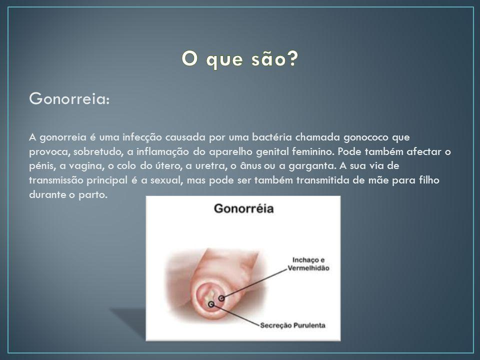 O que são Gonorreia:
