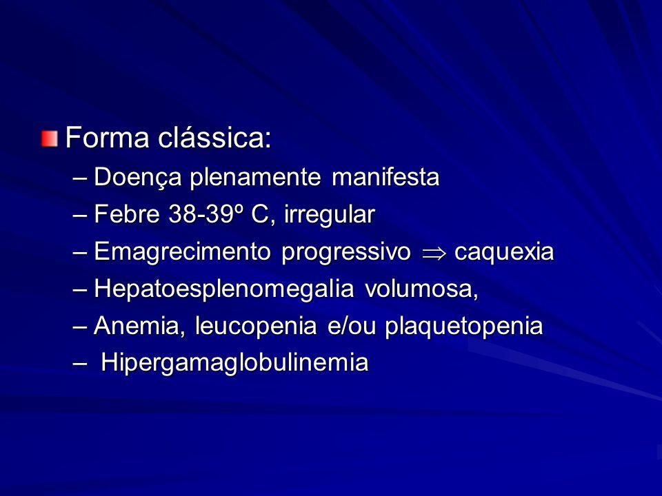 Forma clássica: Doença plenamente manifesta Febre 38-39º C, irregular