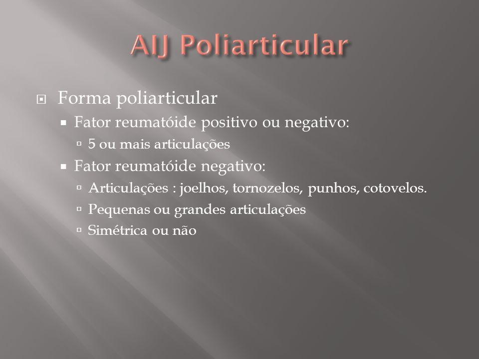 Forma poliarticular Fator reumatóide positivo ou negativo: