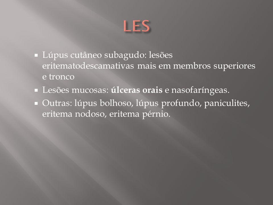 LES Lúpus cutâneo subagudo: lesões eritematodescamativas mais em membros superiores e tronco. Lesões mucosas: úlceras orais e nasofaríngeas.
