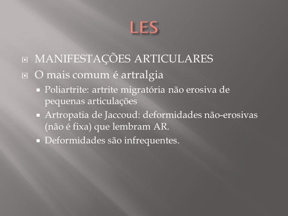 LES MANIFESTAÇÕES ARTICULARES O mais comum é artralgia