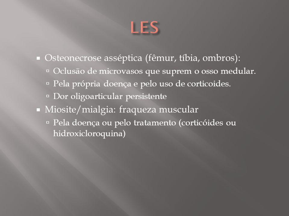 LES Osteonecrose asséptica (fêmur, tíbia, ombros):