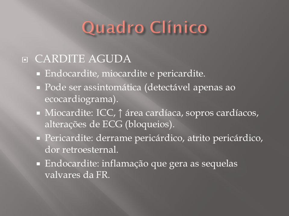 Quadro Clínico CARDITE AGUDA Endocardite, miocardite e pericardite.