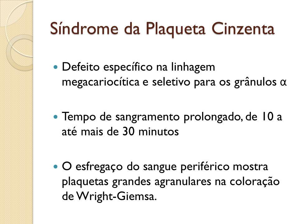 Síndrome da Plaqueta Cinzenta