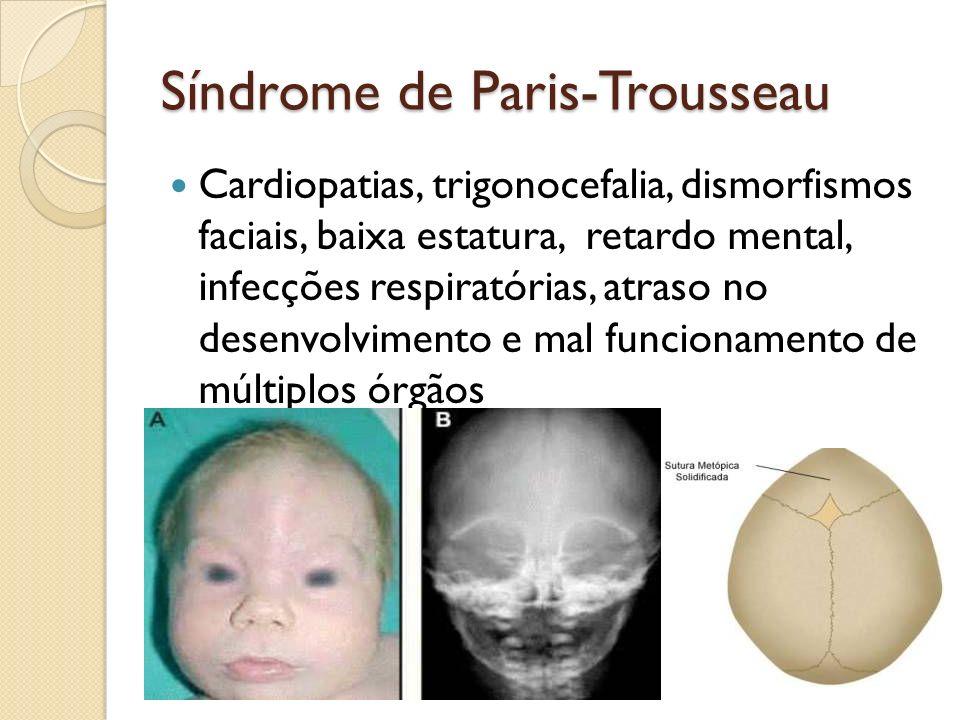 Síndrome de Paris-Trousseau