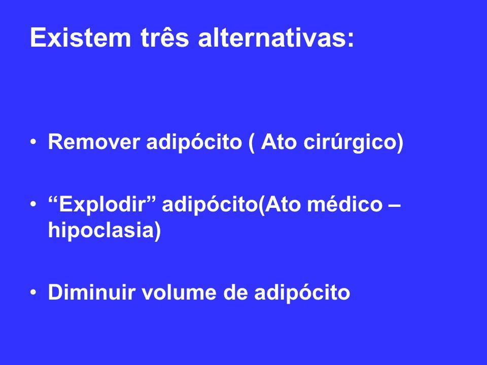 Existem três alternativas: