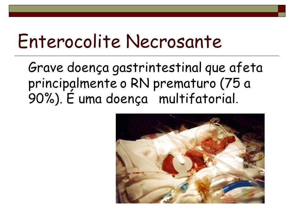 Enterocolite Necrosante