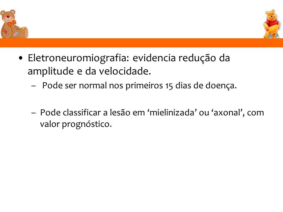 Eletroneuromiografia: evidencia redução da amplitude e da velocidade.