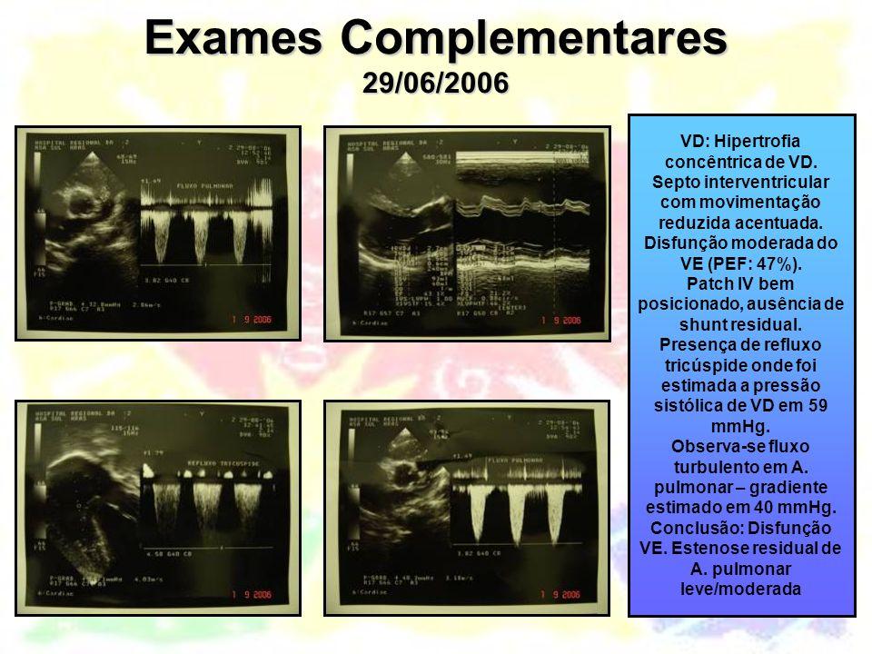 Exames Complementares 29/06/2006