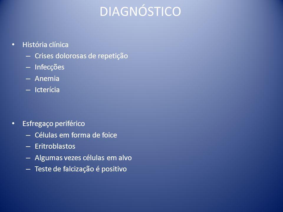 DIAGNÓSTICO História clínica Crises dolorosas de repetição Infecções