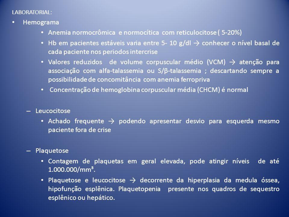 Anemia normocrômica e normocítica com reticulocitose ( 5-20%)