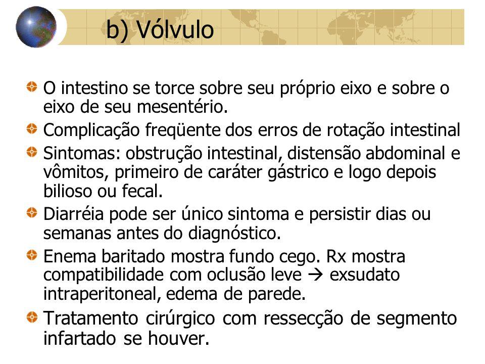 b) Vólvulo O intestino se torce sobre seu próprio eixo e sobre o eixo de seu mesentério. Complicação freqüente dos erros de rotação intestinal.