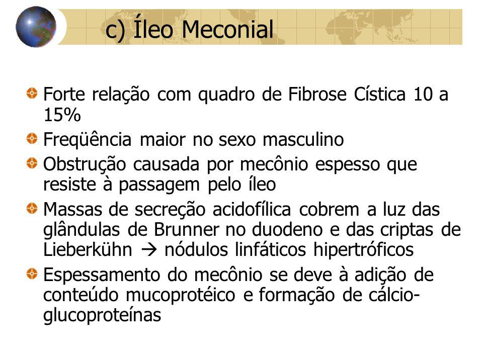 c) Íleo Meconial Forte relação com quadro de Fibrose Cística 10 a 15%