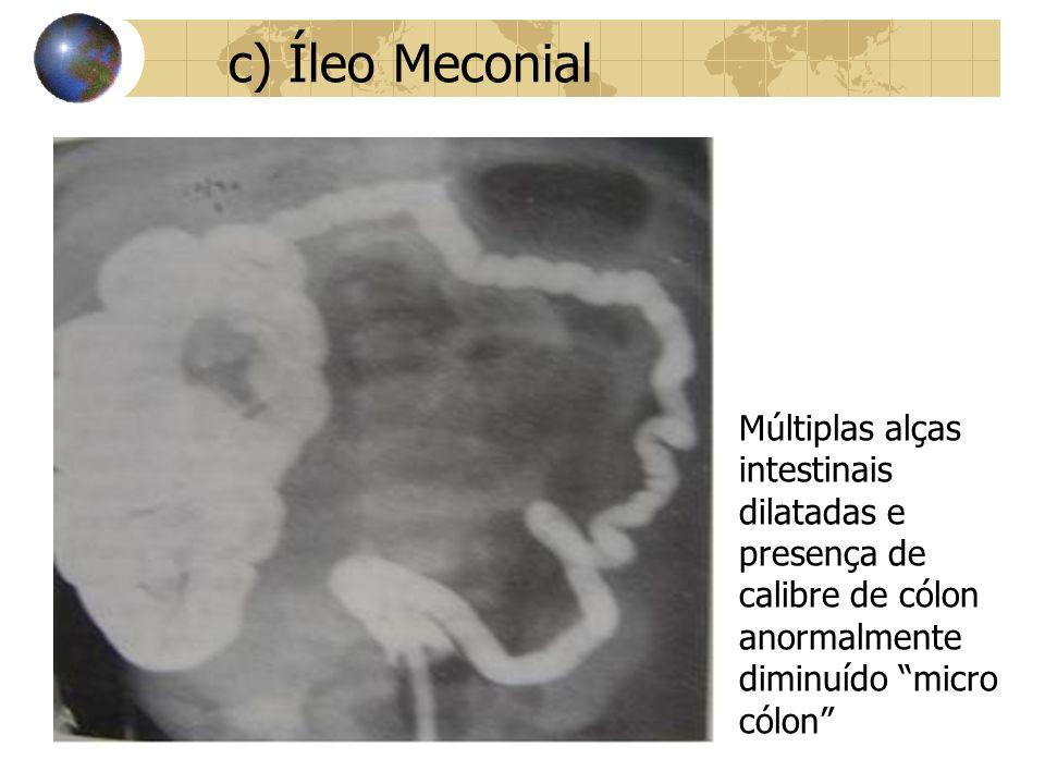 c) Íleo Meconial Múltiplas alças intestinais dilatadas e presença de calibre de cólon anormalmente diminuído micro cólon