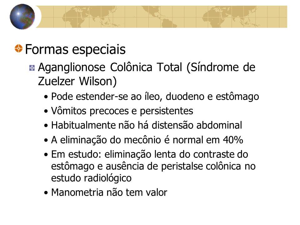 Formas especiais Aganglionose Colônica Total (Síndrome de Zuelzer Wilson) Pode estender-se ao íleo, duodeno e estômago.