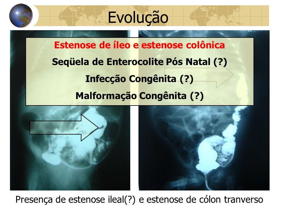 Evolução Estenose de íleo e estenose colônica