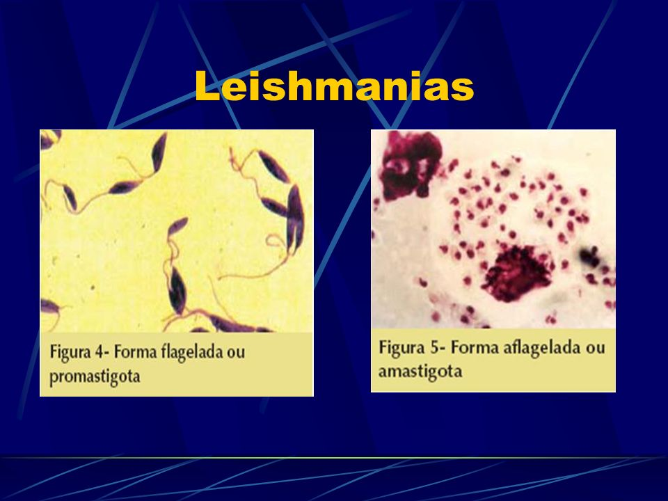 Leishmanias