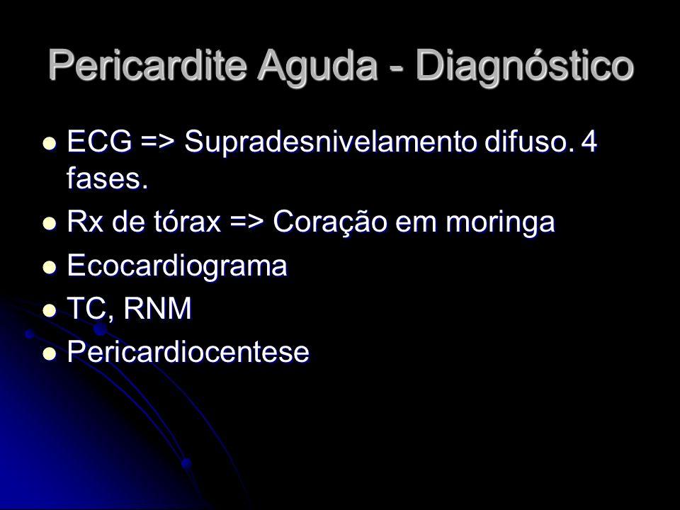 Pericardite Aguda - Diagnóstico