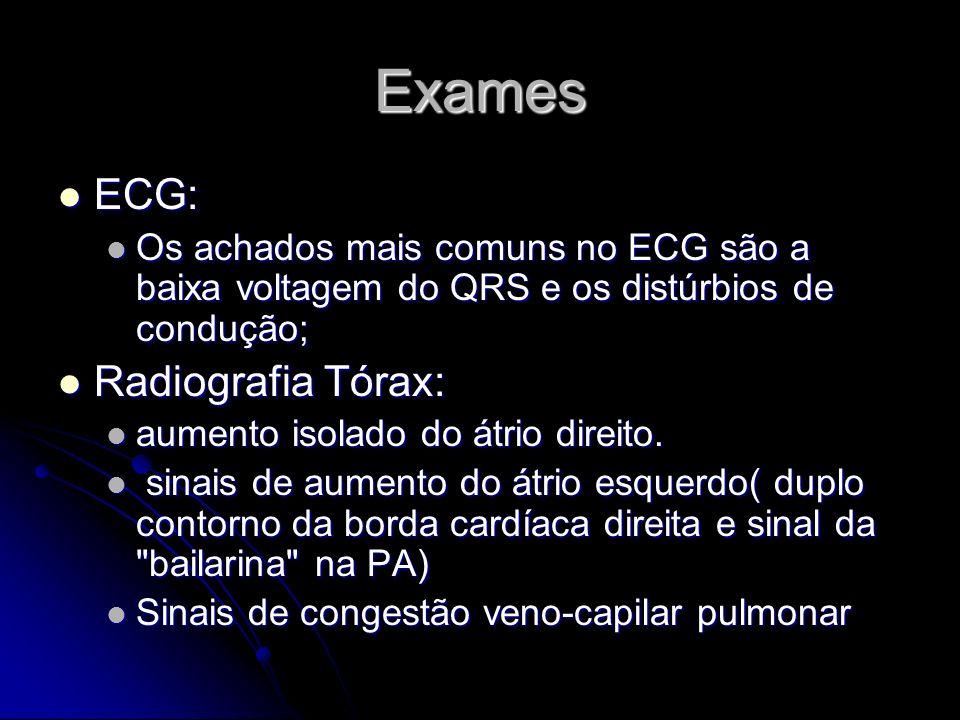 Exames ECG: Radiografia Tórax:
