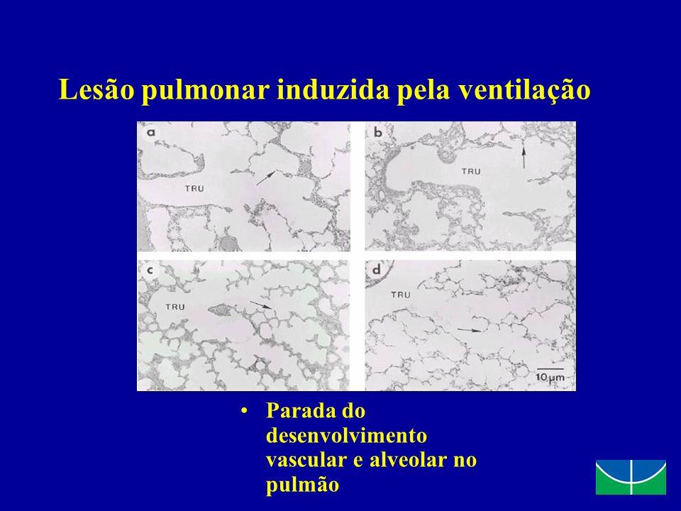 Lesão pulmonar induzida pela ventilação