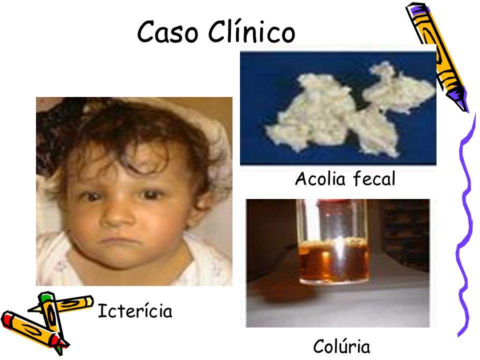Caso Clínico Acolia fecal Acolia fecal Colúria Icterícia Colúria