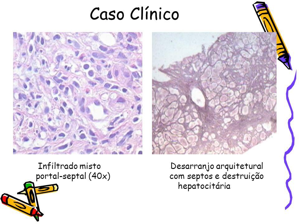 Caso Clínico portal-septal (40x) com septos e destruição hepatocitária