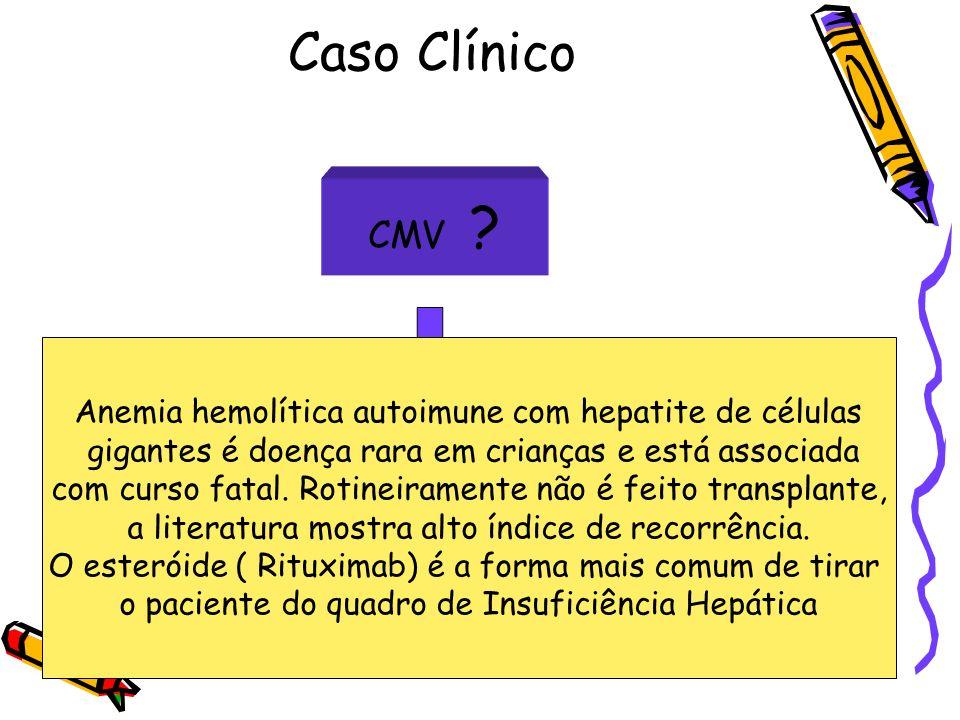 Caso Clínico CMV Anemia hemolítica autoimune com hepatite de células