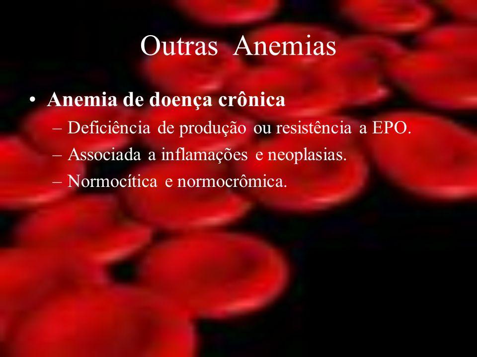 Outras Anemias Anemia de doença crônica